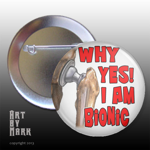 Yes Im Bionic Hip Replacement surgery Pin back Button by ArtByMark